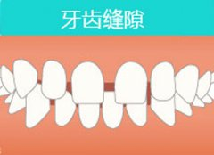牙齿稀疏是肾不好还是牙齿问题