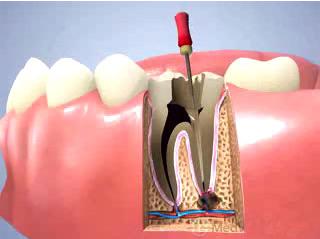 严重蛀牙做根管治疗