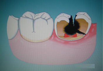 龋齿要不要杀牙神经需要看检查结果