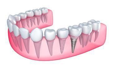 第二磨牙结构图片
