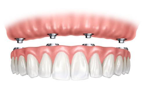 深圳牙科医院医生表示,大家可以放心,全口牙齿缺失后做种植牙吗,不是