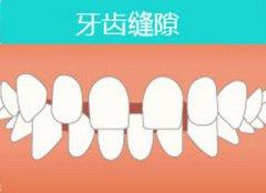 矫正牙齿稀疏多少钱