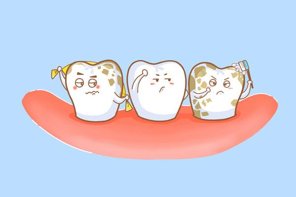 深圳爱康健口腔医院 牙齿美白 氟斑牙     氟斑牙是一种很常见的色素