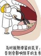 乳牙滞留拔除后恒牙多久会归位