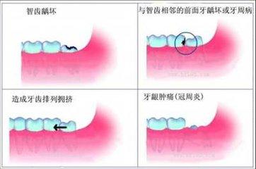 立事牙引发的牙齿症状