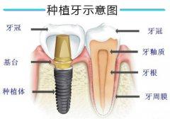 即刻种植牙多久装临时牙