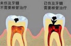 根管治疗后牙齿能用几年