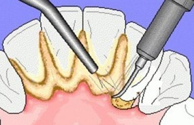 超声波洗牙注意事项