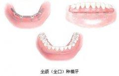 全口种植牙要多少钱