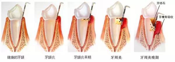 牙龈口腔结构图