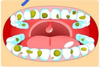 儿童怎么保护牙齿