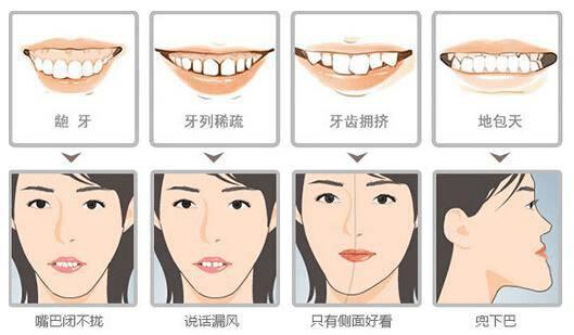 牙齿几岁矫正最好