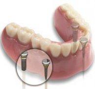 种植牙手术要多久