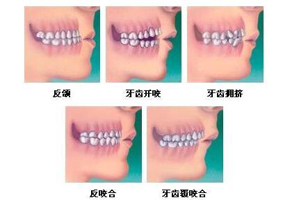 牙齿矫正的年龄限制