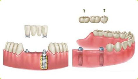 多颗牙齿缺失怎么选择修复方式