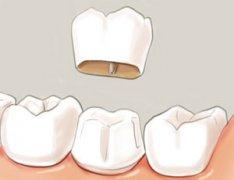 牙冠修复价格