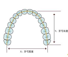 成年人牙齿拥挤扩弓还是拔牙矫正好?