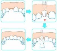 传统种牙和即刻种牙的区别