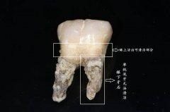 什么程度的牙周炎需要龈下刮治