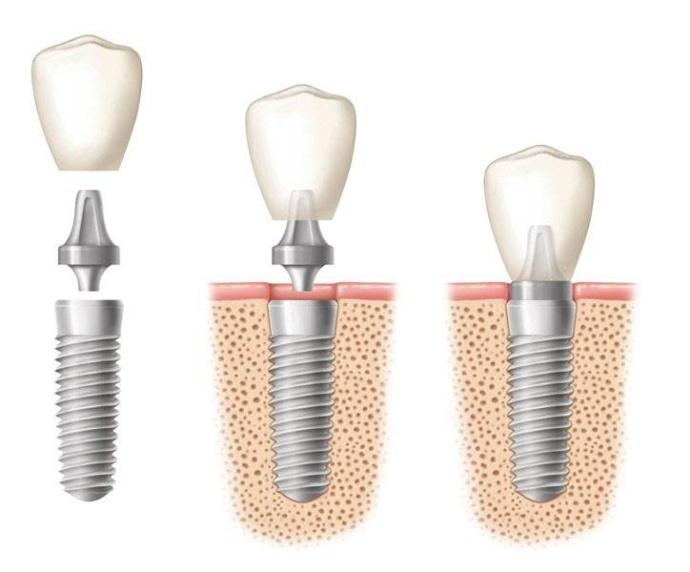 医生表示,一般即刻种植牙之前都是需要全面拍片检查的,而且还需要解决蛀牙、牙周等以免影响种植牙结果的问题。而且一般即刻种植牙要多久,这个也是需要根据患者自身牙齿情况,以及种牙过程的细节等来了解的。 1、口腔情况:即刻种植牙对于牙周和牙槽骨情况要求较高,所以需要医生面诊后才能确定是否可以做,如果不能马上做,一般是需要先治疗牙周炎,或者是牙槽骨骨量不够,需要先做植骨手术后才能种植牙,所以这就会造成时间的差异。 2、手术过程:如果是口腔问题处理好了,一般就需要在3个月或者是更长的时间后,进行人工牙根的植入,这就是