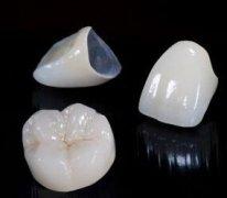牙齿美容冠价格多少