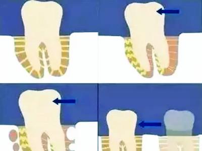 深圳牙科医院医生介绍,牙齿的松动,简单的说,可以分为牙齿疾病造成的