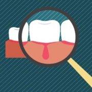 刷牙出血吃药和药物牙膏有用吗