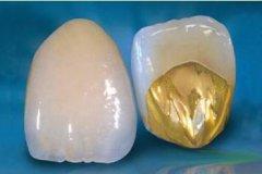 什么是牙冠修复,有哪些材料