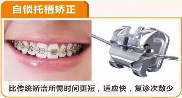 自锁牙套的加力原理_自锁牙套