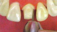 美容冠矫正牙齿的费用
