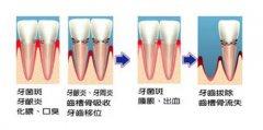 牙龈萎缩症状