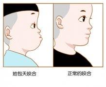 儿童龅牙一般是怎么矫正的