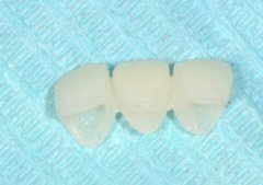口腔临时牙多久可以吃东西