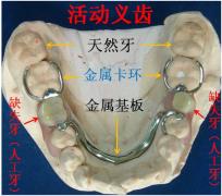 牙齿缺失修复方式的优缺点