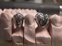 不锈钢假牙可以用多久