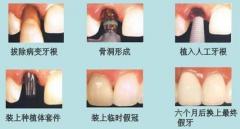 种植牙有几个步骤