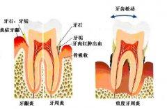 牙结石可以保护牙齿吗