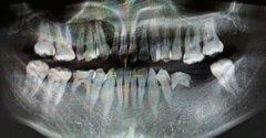 牙齿先天性缺失怎么办