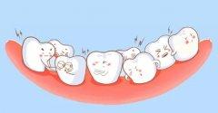 牙齿拥挤正畸是不是要拔牙