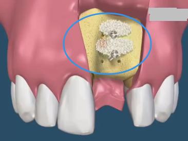 种植牙填骨粉