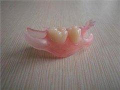 隐形义齿会伤害邻牙吗