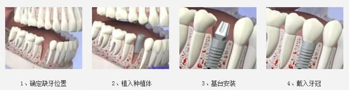 一颗种植牙大概多少钱,几千还是几万?