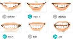 深圳哪个医院牙齿不齐矫正好