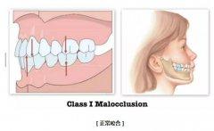 人正常状态牙齿闭合图