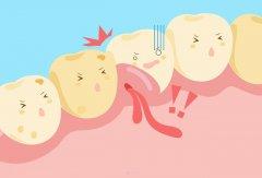 重度慢性牙周炎
