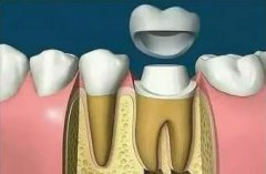 牙齿碎了要镶牙,一般多少钱