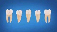 牙隐裂怎么治疗,只能做牙冠吗