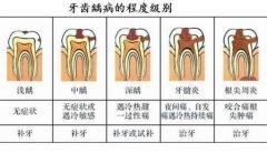 根尖周炎是做根管治疗还是拔牙好