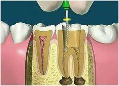 牙根尖炎需要吃什么药治疗