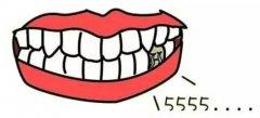 牙齿掉了一颗,能马上补吗